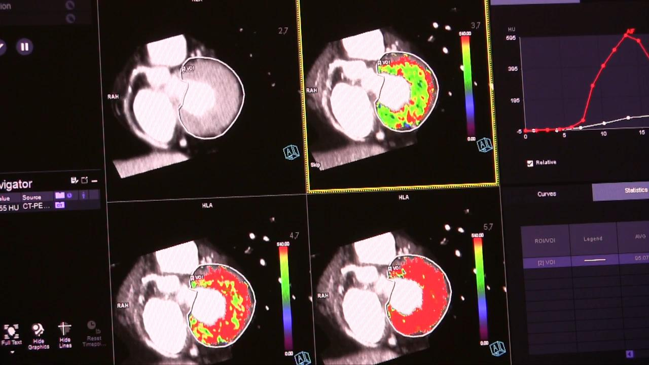 VIDEO: The State of CT Myocardial Perfusion Imaging | DAIC