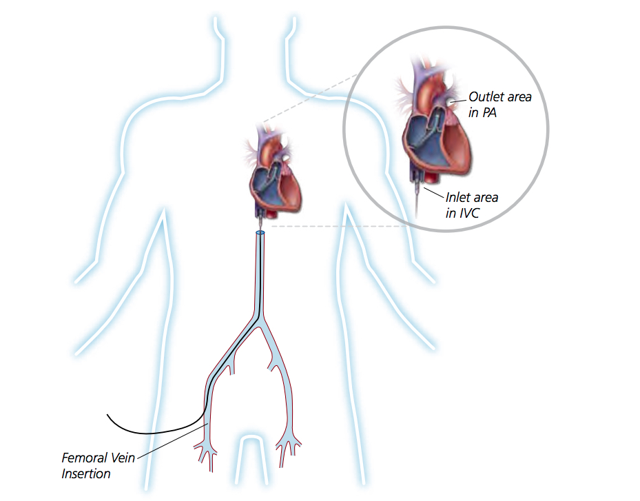 Right Heart Hemodynamic Support With Impella RP, Getting it