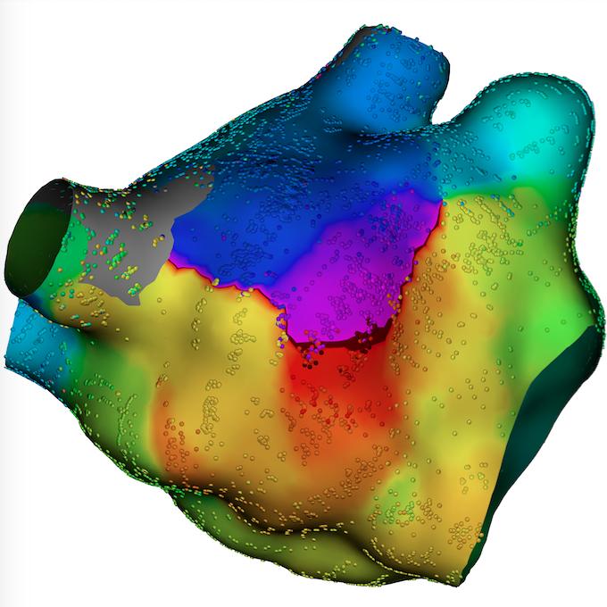 New Technologies to Improve Atrial Fibrillation Ablation   DAIC