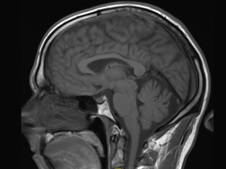 Gadolinium May Remain in Brain after Contrast MRI | DAIC