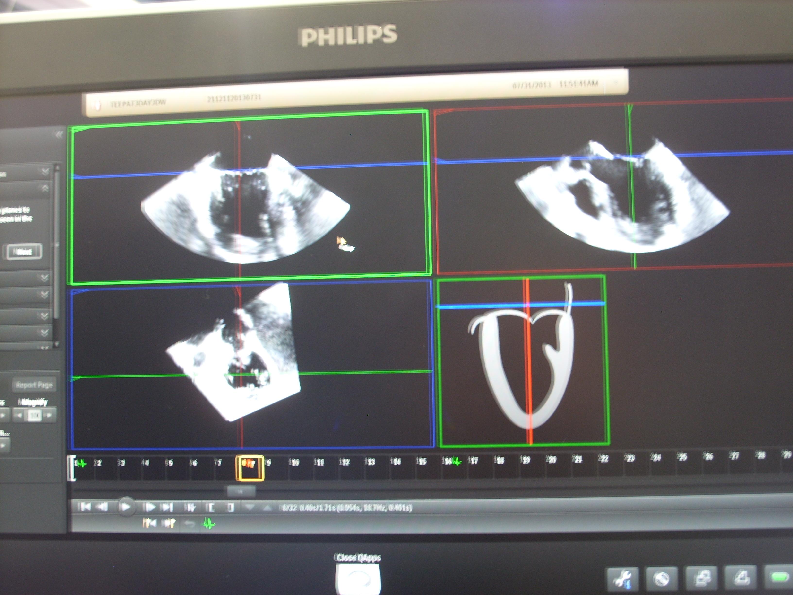 Editor's Choice of Most Innovative Cardiovascular Technology