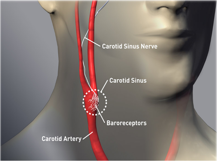 Similar to a pacemaker, the Barostim Neo System uses a pulse generator implanted below the collar bone with a lead that attaches to the carotid artery in the neck. It delivers electrical impulses to baroreceptors to regular heart failure symptoms.