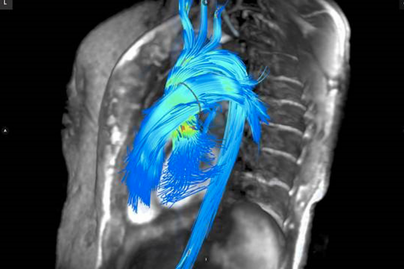 Arterys collaborated with GE Healthcare to create the ViosWorks software to cardiac MRI analysis.