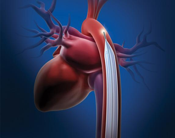 FDA Intra-Aortic Balloon Pumps
