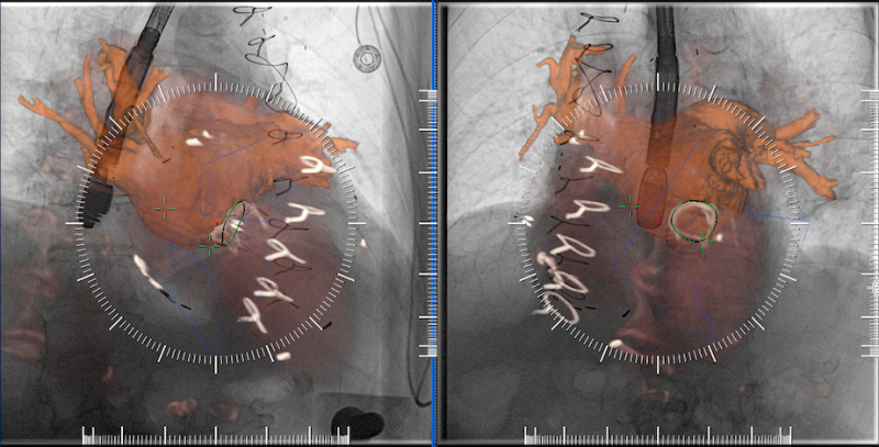 An example of multimodality image fusion with live angiography to enhance soft-tissue visualization during complex procedures. This example is from Siemen's new TrueFusion software released in 2018. Advances in angiography imaging.