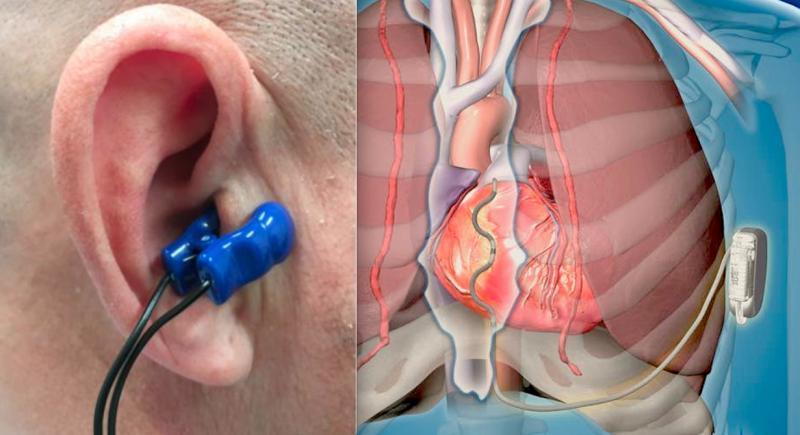 Several electrophysiology advances presented as late-breaking studies at the 2019 Heart Rhythm Society (HRS) annual meeting in May made the top 25 list this month. Among these was the Parasym Salustim device ear clip that stimulates the vagus nerve, which was found to reduced AF burden compared with a sham procedure in the TREAT AF trial. Another innovation was first in human data on Medtronic's Extravascular ICD, which is its version of a subcutaneous ICD that does not require placing venous leads