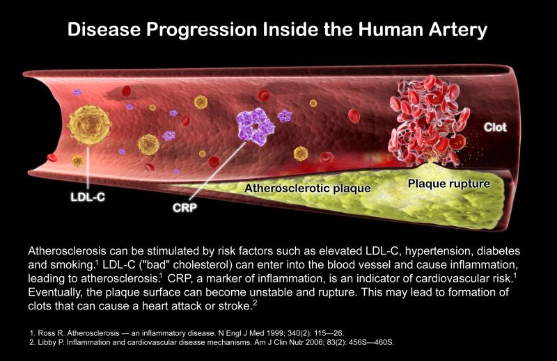 How coronary artery plaque forms and becomes a vulnerable plaque leading to a heart attack.