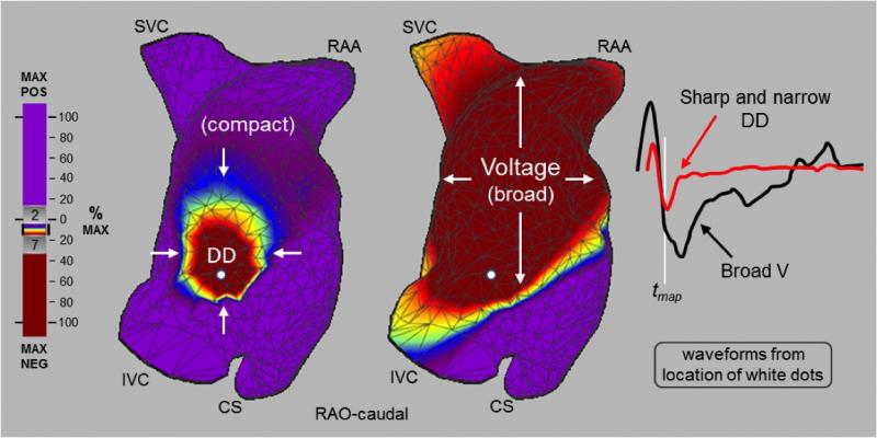 Acutus dipole density EP mapping for ablation procedures.