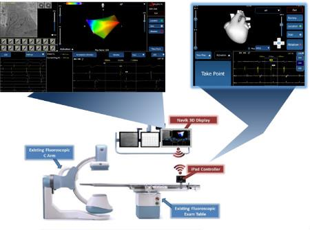 Technology Improvements Driving Electrophysiology Market Growth