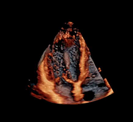 cardiac ultrasound echocardiography image from a GE E95 system at American society of echo to evaluate athlete's hearts and cardiac function