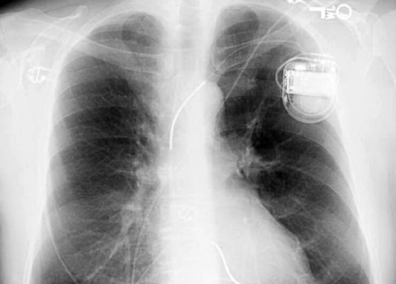 New Tool Predicts Benefits and Risks of Implantable Defibrillator for Heart Failure Patients