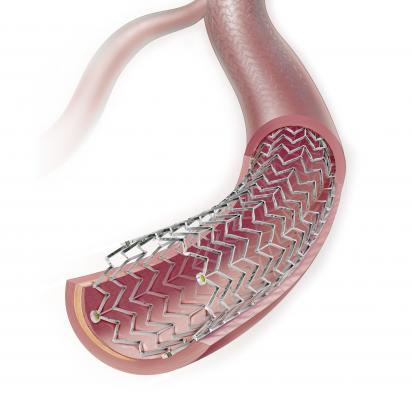 FDA Issues Letter About Paclitaxel Coated Balloons and Eluting Stents