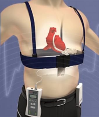 Leviticus Cardio and Jarvik Heart Unveil Wireless Heart Pump System