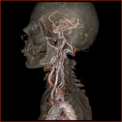 Medication Alone May Not Eliminate Stroke Risk in Carotid Atherosclerotic Stenosis Patients
