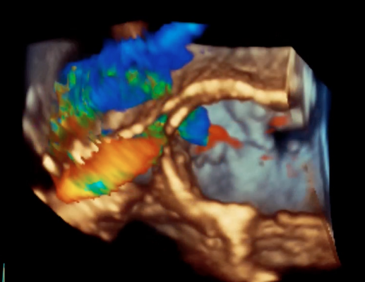 An example of one of the latest echocardiography image processing technologies, GE's Vmax.