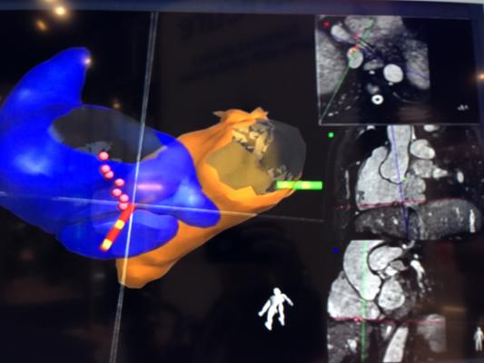 Imricor Completes Enrollment for Clinical Study on Vision-MR Ablation Catheter