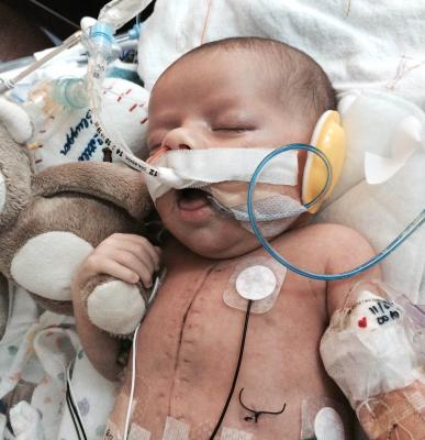 LeCompte Maneuver Saves Baby at Lucile Packard Children's
