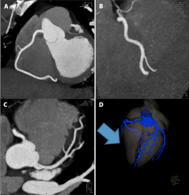How to reduce radiation dose in cardiac CT.