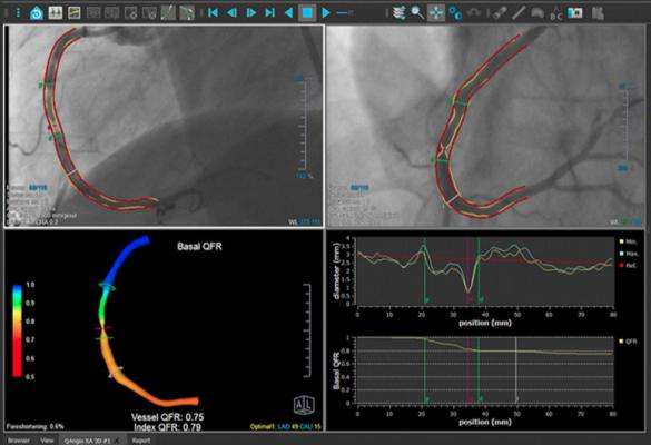 Image-based FFR May Replace Pressure Wires and Adenosine | DAIC on