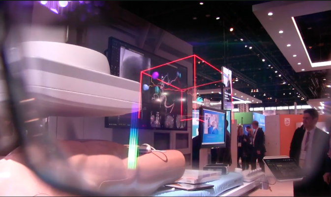 The view through a HoloLens headset in the Philips RSNA 2017 booth of holographic reconstruction of liver anatomy to guide a liver tumor embolization procedure. The augmented reality 3-D reconstruction can be rotated by hand movement or voice commands. RSNA 2017, #RSNA2017, #RSNA17