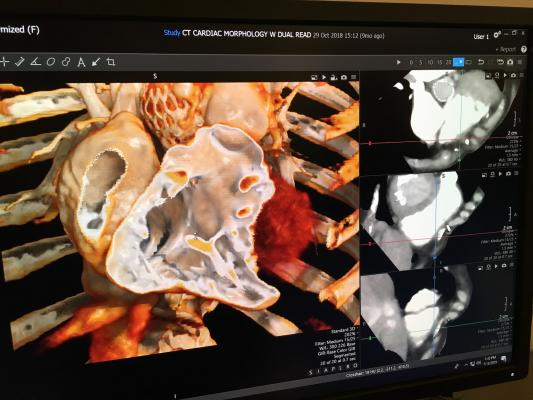 An example of a cardiac computed tomography (CT) exam showing a Medtronic CoreValve transcatheter aortic valve replacement (TAVR) device implanted. The image was reconstructed using Canon Medical's Global Illumination photo-realistic rendering advanced visualization post-processing software. #SCCT2019