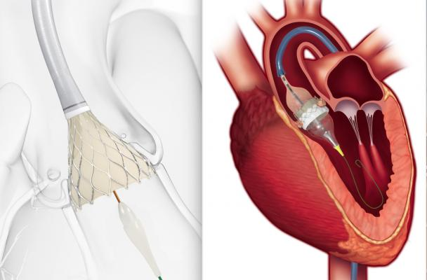 FDA Approves TAVR for Low-risk Patients Creates A Paradigm