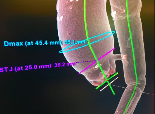 Example of an aortic valve CT imaging workup for TAVR valve sizing and assessing access routes. This patient has an aneurism in the aortic arch. Image from GE Healthcare.