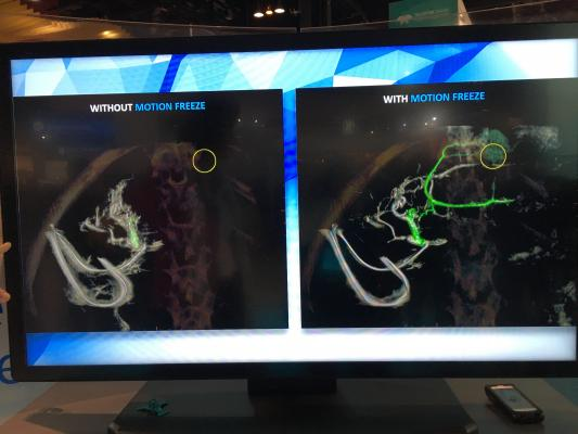 GE Healthcare showed a new Assist technology for its interventional guided therapy (IGS) angiography systems' rotational angiography.  RSNA 2017, #RSNA2017, #RSNA17