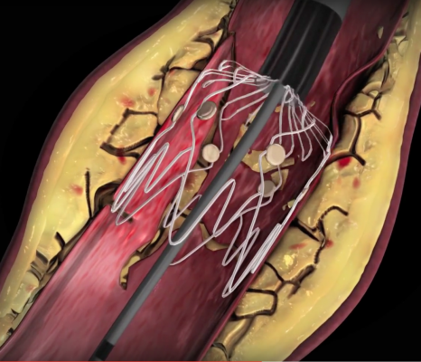"""Intact Vascular Inc. developed the Tack Endovascular System to repair artery dissections caused by balloon angioplasty. Rather than using a full-sized stent, this system """"tacks"""" the vessel wall with a very short stent of only a few millimeters to avoid encasing the vessel with metal, which can lead to high restenosis rates."""
