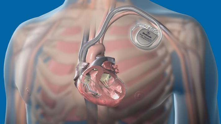 A step-by-step overview of how to perform interventional CRT (I-CRT) lead placement using the coronary sinus. This image shows the Medtronic Attain Performa quadripolar lead and VivaQuad XT CRT-D system.
