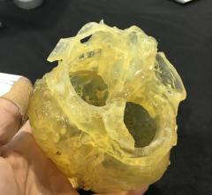 The use of 3-D printed hearts from patients' pre-TAVR planning CT scans have improved outcomes of procedures at the University of Minnesota. Clearly identifying where calcium is located on the valves prior to TAVR device implantation has helped reduce the incidence of paravalvular leak.  #SCAI, #SCAI2018