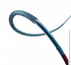 Boston Scientific Concludes Evolve II Clinical Trial Enrollment Synergy Stent