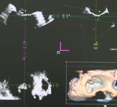 ASE Participating in Global Study to Establish New Standardization in Cardiovascular Ultrasound