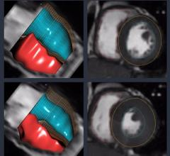 Arterys Demonstrates AI Cloud-Based Medical Image Analysis Solutions at RSNA 2018