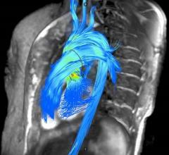 Contrast-Free Cardiac MRI May Better Assess Need for Mitral Valve Surgery