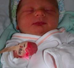 AHA Newborn Screenings for Congenital Heart Defects Pulse Oximetry
