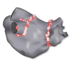 FDA Approves Biosense Webster's Tag-Index Guided Ablation Software