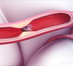 Thrombolytic Science Initiates Phase 2 Trial of Novel Ischemic Stroke Treatment Regimen