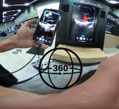 ICUS Live Case to Demonstrate Toshiba's Aplio 500 Platinum