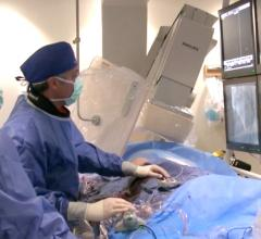 Khaldoon Alaswad, M.D., clearing a chronic total occlusion (CTO) in the cath lab at Henry Ford Hospital.