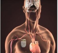 FDA Approves Barostim Neo System for Advanced Heart Failure Patients. Similar to a pacemaker, the Barostim Neo System uses a pulse generator implanted below the collar bone with a lead that attaches to the carotid artery in the neck. It delivers electrical impulses to baroreceptors in the neck, which sense how blood is flowing through the carotid arteries and relays information to the brain. The brain, in turn, sends signals to the heart and blood vessels that relax the blood vessels.
