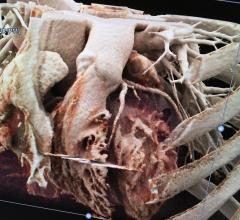 CT Calcium Scoring for Heart Disease May Lead to Prevention