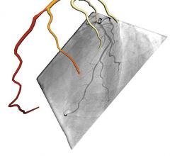 CathWorks Receives CPT Code for Non-invasive FFRangio Measurements During PCI