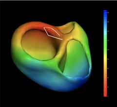 VIVO 3-D Cardiac Mapping System Cleared by FDA