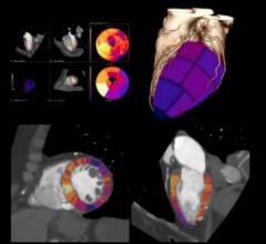 CT myocardial perfusion