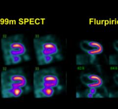 rsna 2013 radiopharmaceuticals tracers nuclear imaging trial study flurpiridaz