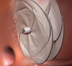 FDA Approves Gore Cardioform Septal Occluder for PFO Closure Prevent Recurrent Ischemic Stroke