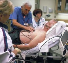 Heart Attack, Stroke Risks Increase Leading Up to Cancer Diagnosis