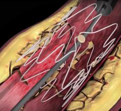 First European Patient Enrolled in Intact Vascular's TOBA II BTK Trial