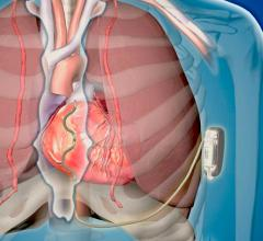 A first-in-human pilot study of Medtronic's investigational Extravascular Implantable Cardioverter Defibrillator (EV ICD) system showed it can be implanted with no major complications, and can sense, pace and defibrillate the heart.